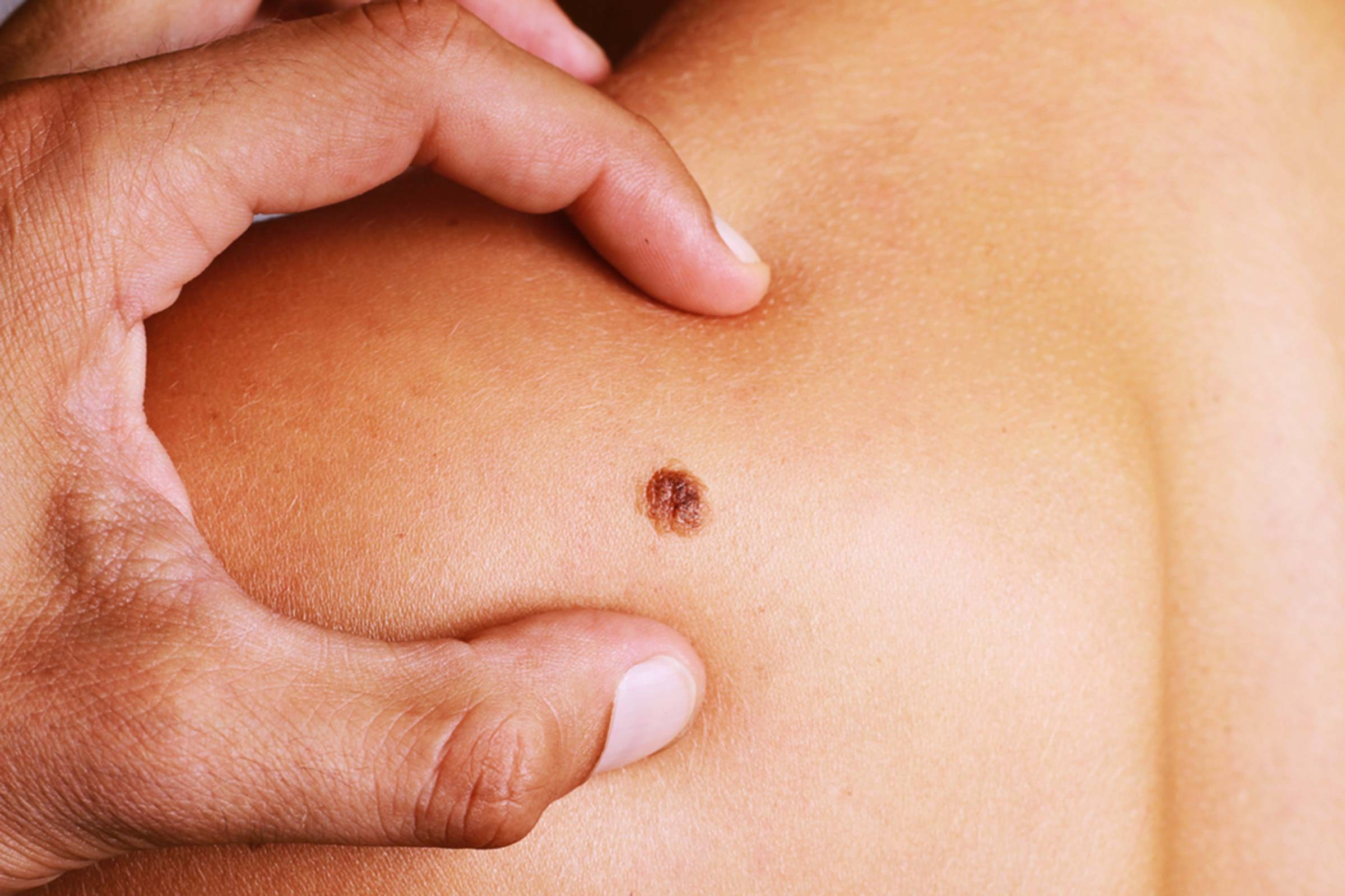 50 Skin Cancer Facts Dermatologists Want You To Know The Healthy