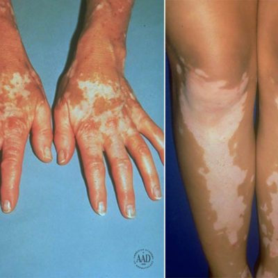 03-Vitiligo-Here's-the-Deal-with-Those-Weird-White-Spots-on-Your-Skin-courtesy-American-Academy-of-Dermatology