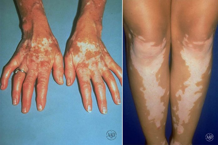 Vitiligo on the hands and lower legs