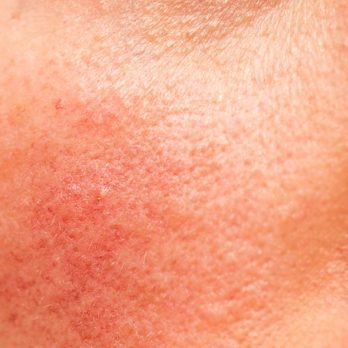 6 Surprising Signs of Disease Your Skin Can Reveal