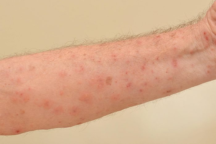 itchy red spots on skin of arm