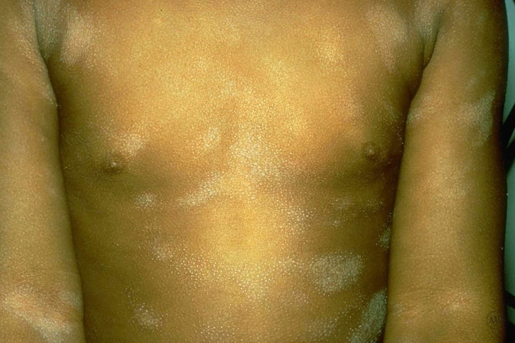 Pityriasis alba on the chest and arms