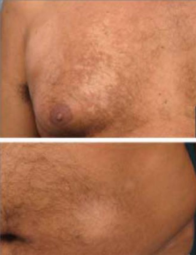 Hypopigmented mycosis fungoides on the chest and belly