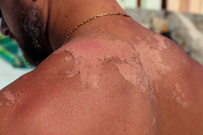 white spots on sunburned skin of a man's shoulders and back