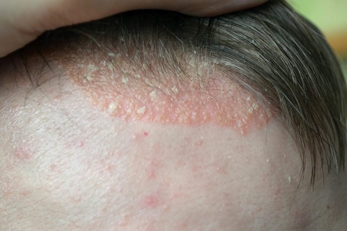 scalp with itchy looking eczema at hairline
