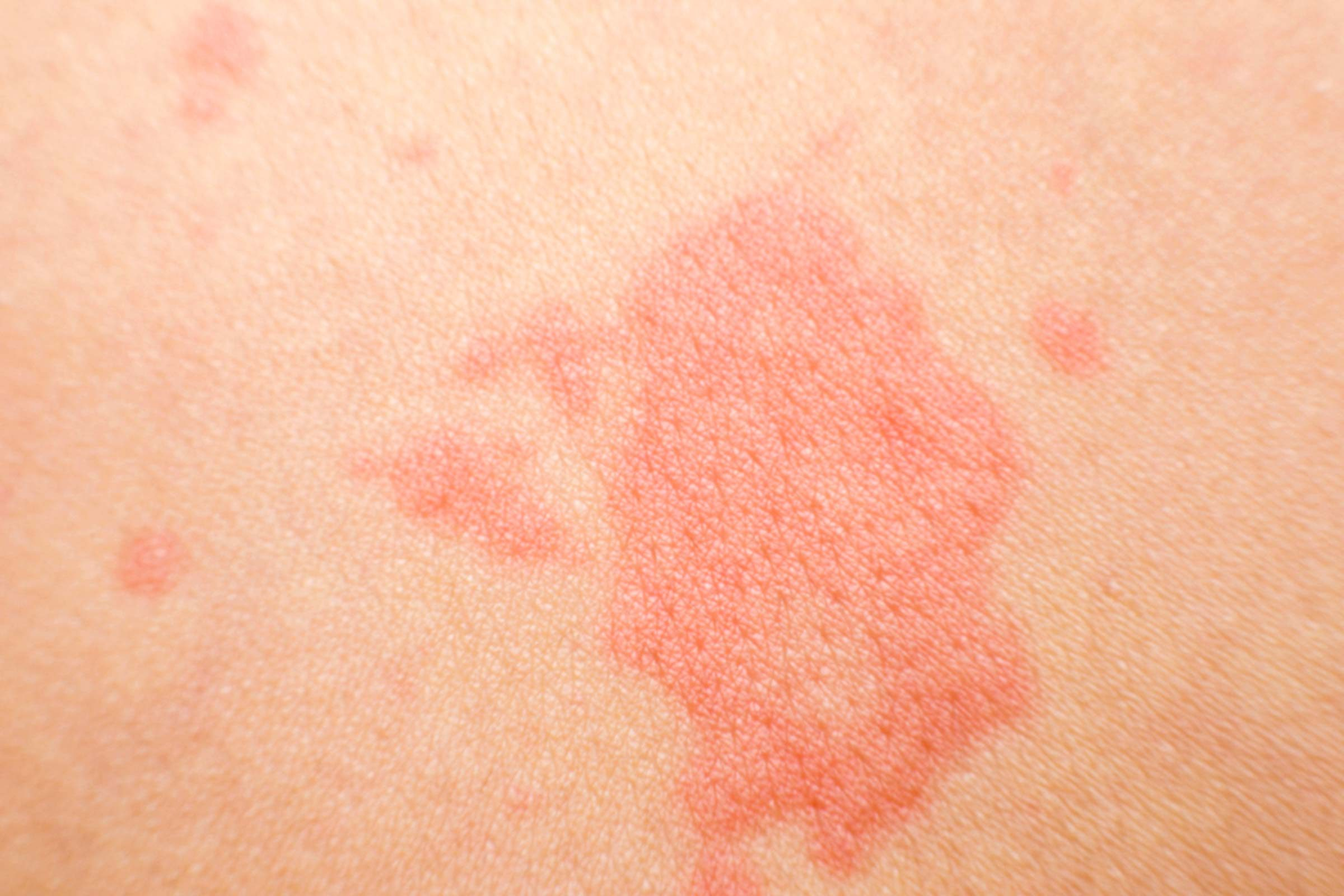 red patch on skin