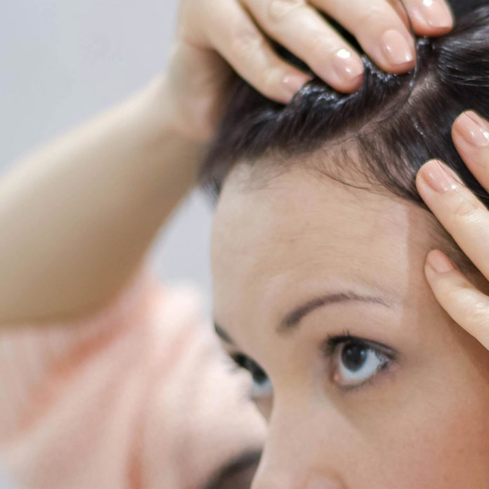 20 Reasons for Your Itchy Scalp (Besides Head Lice)