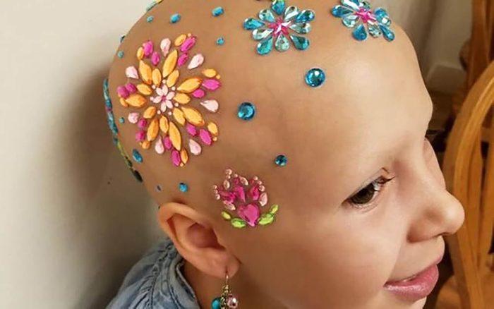 September-2017-HEROES-bald-is-beautiful-courtesy-Daniella-wride-FT