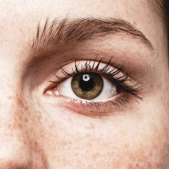 Yes, Eye Freckles Are a Thing—and This Is What They Reveal About Your Health