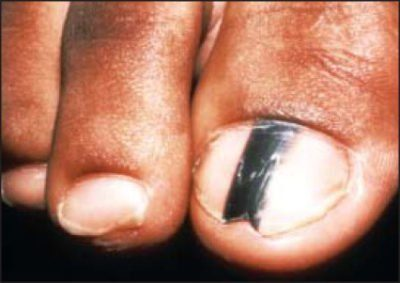 close up of a bit toe with a black stripe; nail melanoma