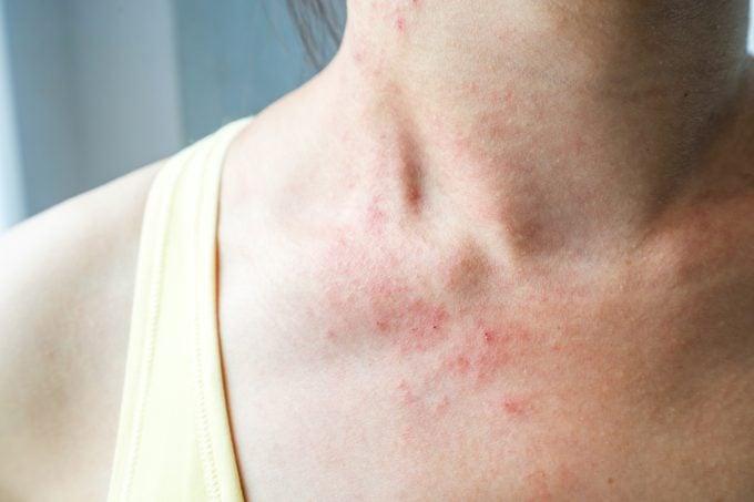 woman with rash irritated skin eczema