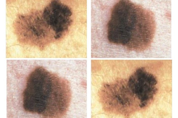 Quad image of four brown spots on the skin.