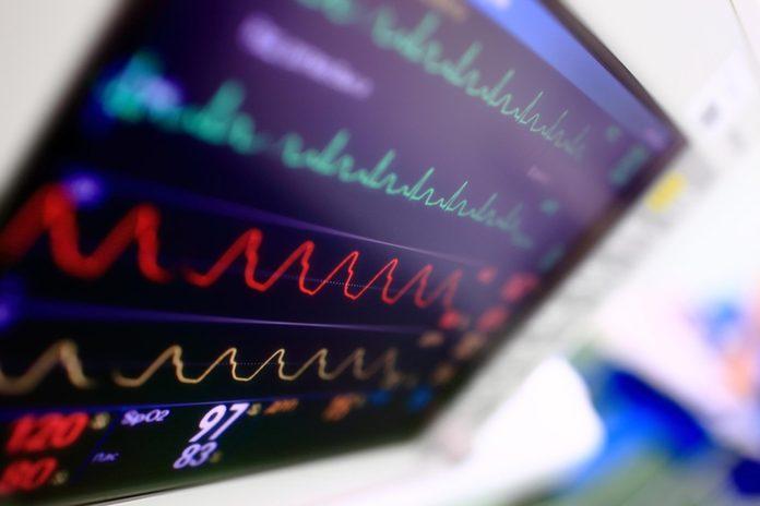 EKG machine screen at a hospital