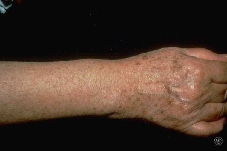 Arm and hand that has sunspots on it.