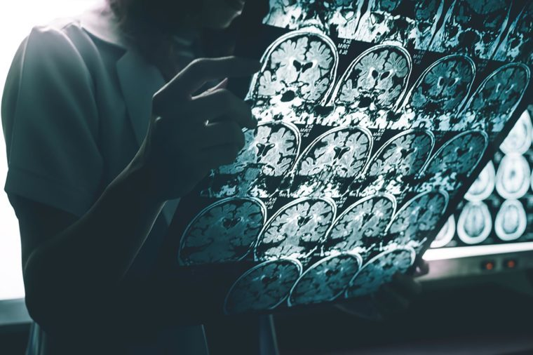 person looking at x-ray scans of the brain