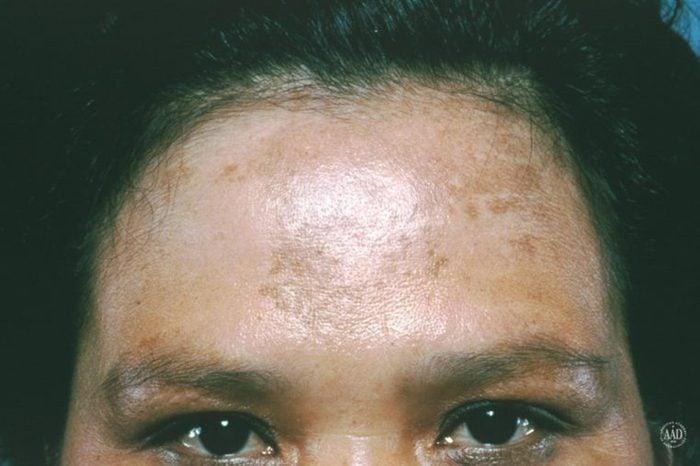 Woman's forehead that has melasma marks.
