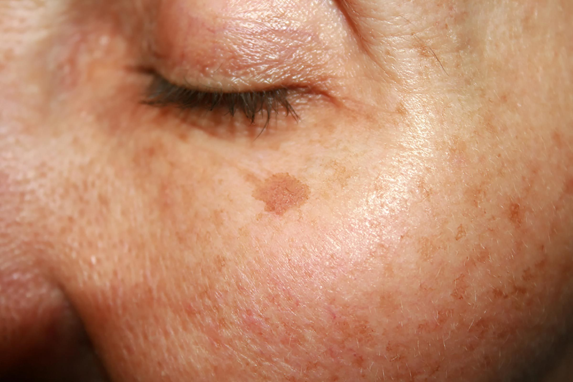 skin with melanoma under eye