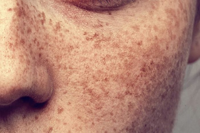 Face that contains freckles on the cheeks and nose.