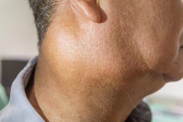 man with very swollen lymph nodes