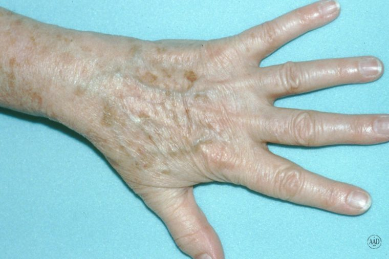 Older person's hand that has age spots on it.