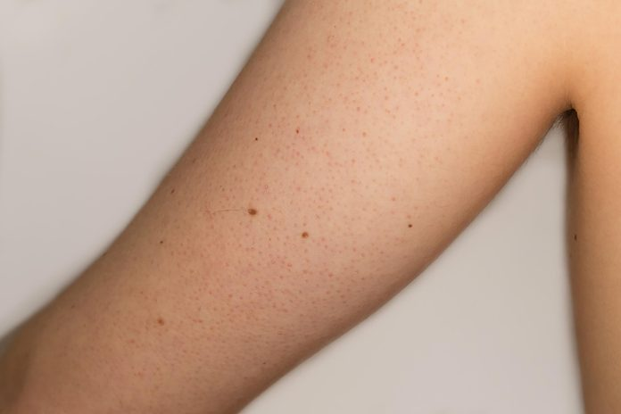 keratosis on the upper arm