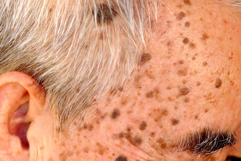 elderly man's face with seborrheic keratosis