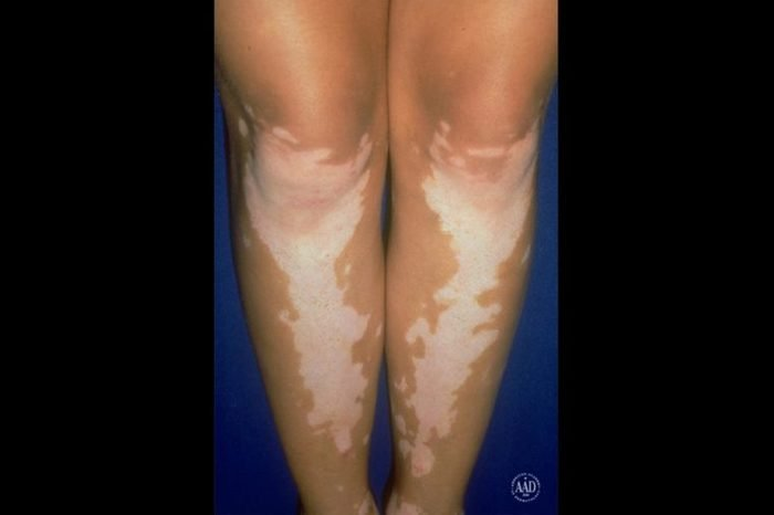 Pair of legs with white vitiligo marks on the knees and shins.