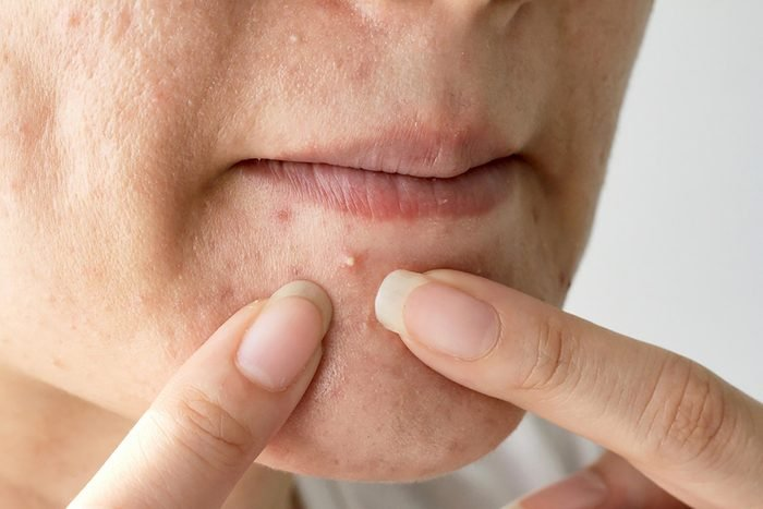 pimple on woman's chin