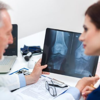 If You Have Osteoporosis, Science May Have Found a New Winning Treatment