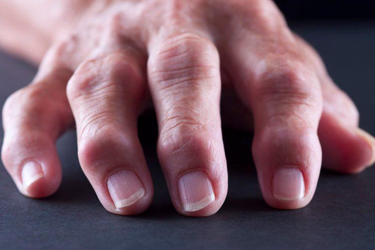 osteoarthritis in fingers