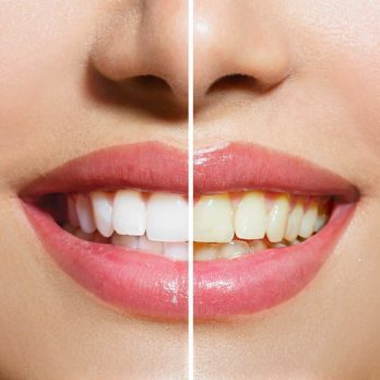 Yellow Teeth Are Actually Stronger Than Bright White Teeth—Here's Why