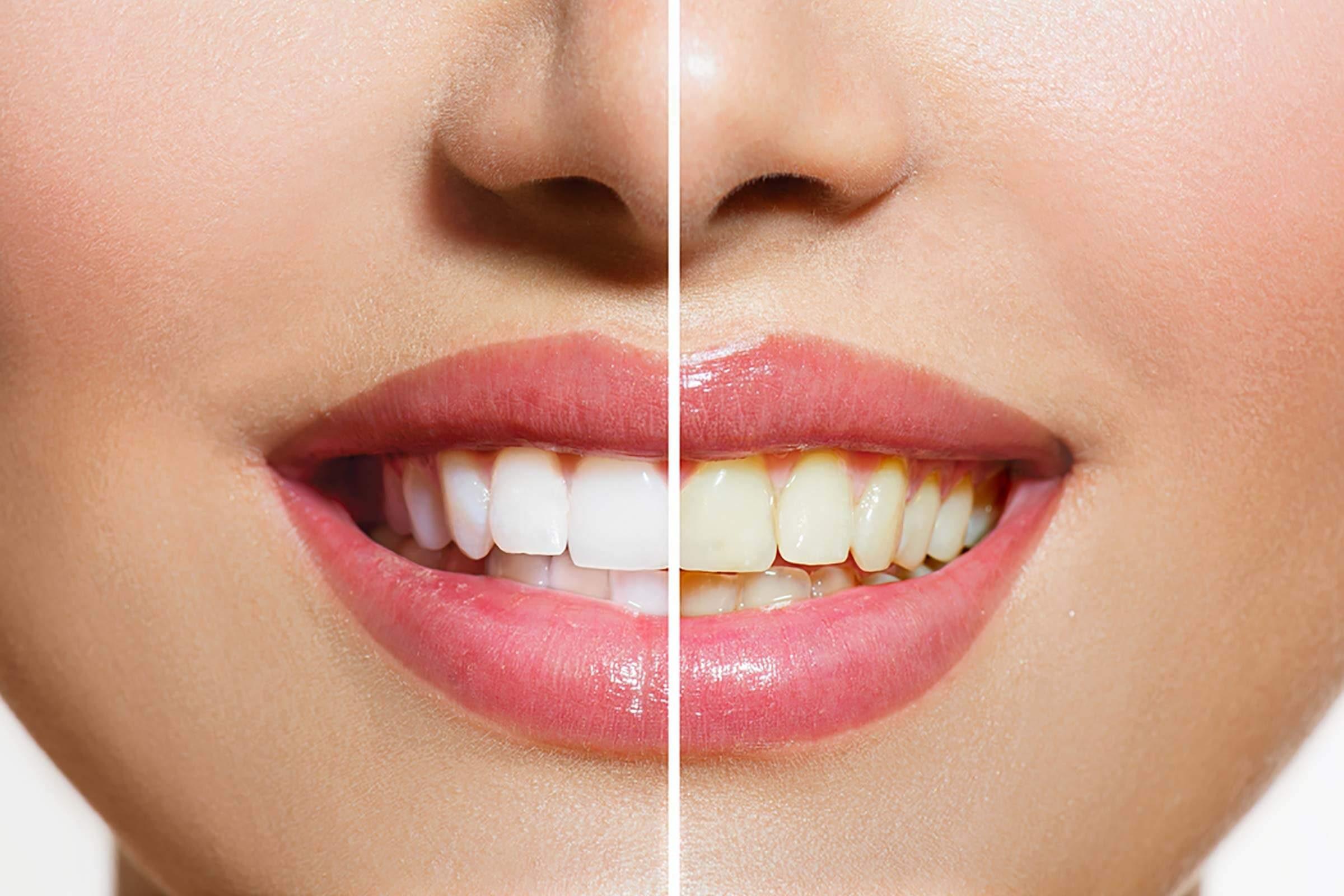 "Image result for Ginger and salt for teeth"""