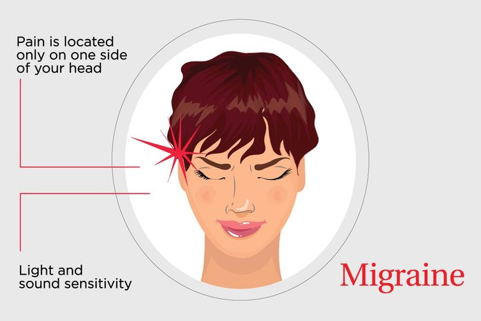 illustration of headache pain on one side of head