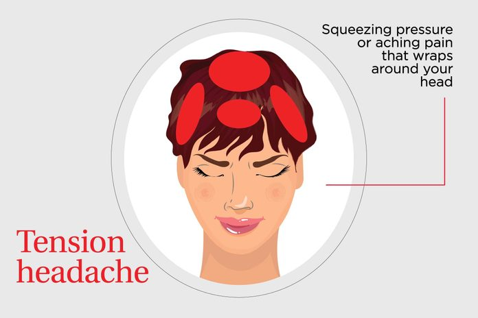 illustration of squeezing or pressure headache pain