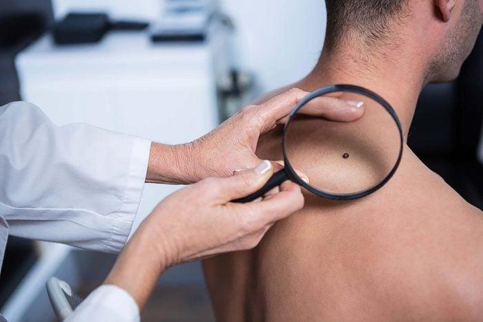 doctor examining mole