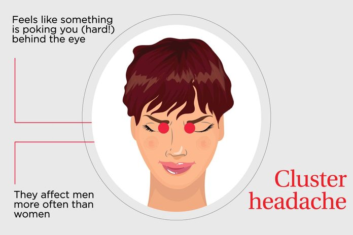 illustration of cluster headache pain