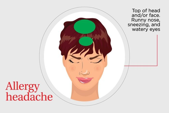 illustration of the pain associated with an allergy headache