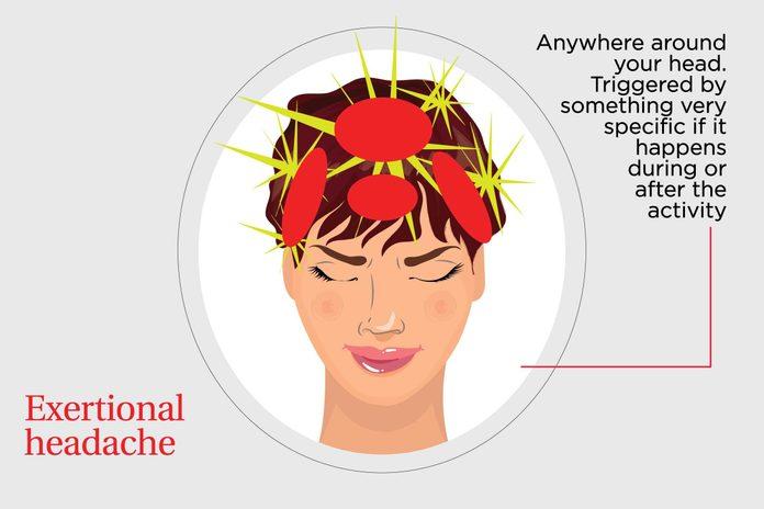 illustration of an exertional headache