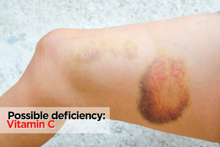 Large bruise on thigh