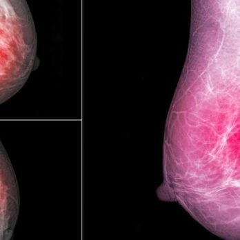 Why Surgery Isn't Always Necessary for This Form of Breast Cancer