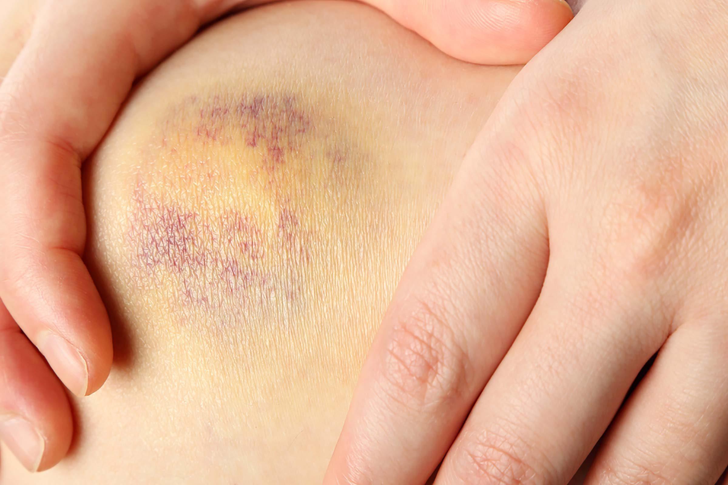 bruise on knee