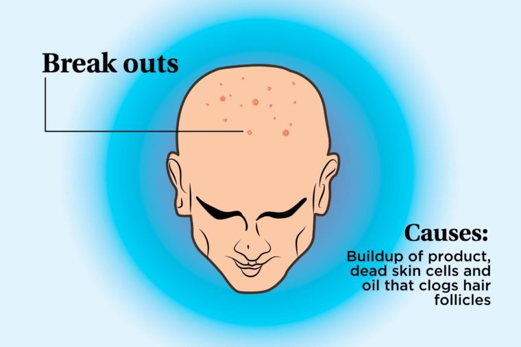 illustration of a person's scalp indicating breakouts and causes