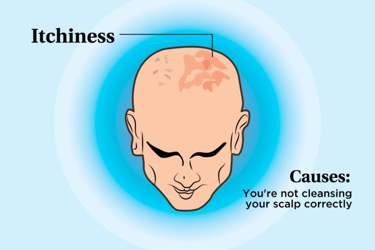 illustration of a person's scalp indicating itchiness