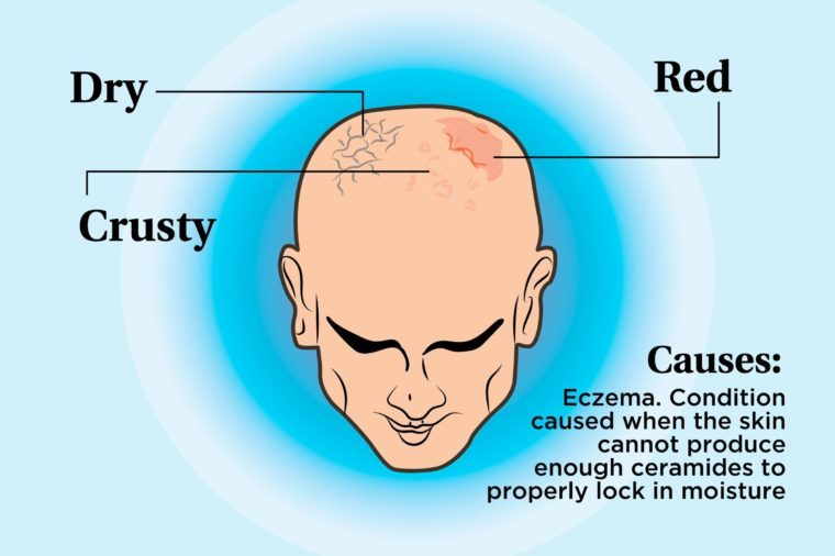 illustration of a person's scalp indicating dry, red, and crusty areas