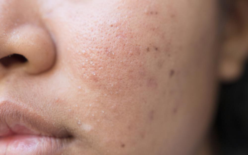 Acne Scars: Bad Habits That Make Acne Scars Worse | The Healthy