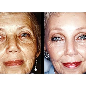 10 Amazing Cosmetic Transformations You Have to See to Believe