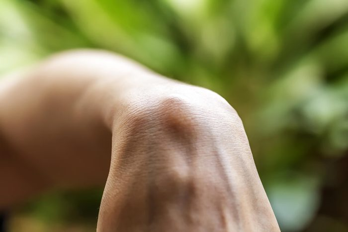 an wrist bent at a 90-degree angle with a bump revealing a ganglion cyst
