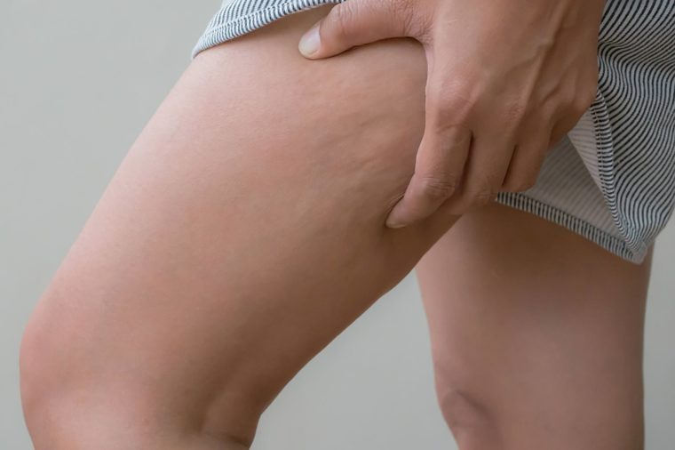 Cellulite on thighs
