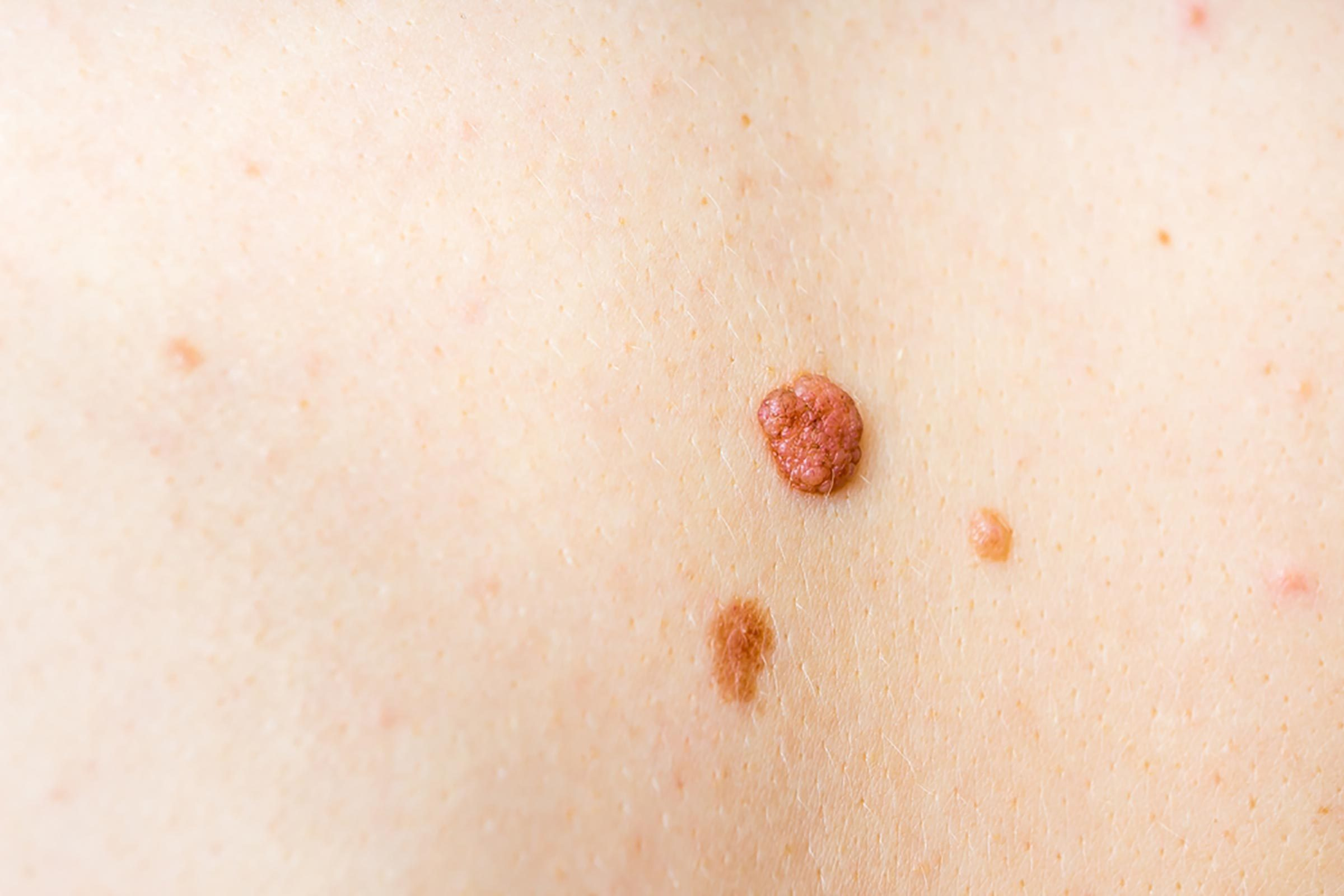 Two skin tags on a person's skin.
