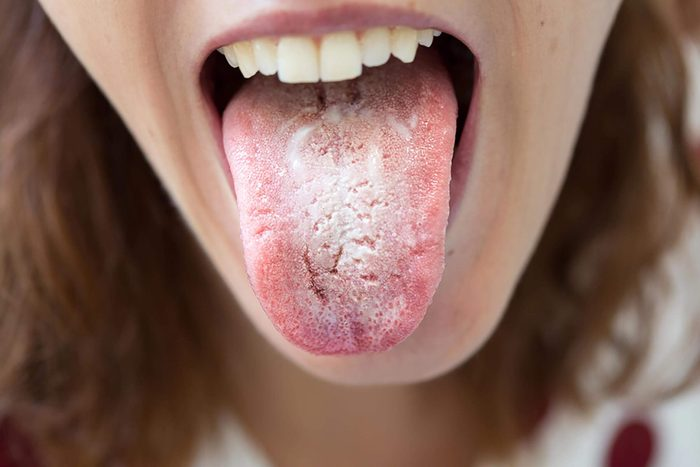 woman sticking out her tongue with thrush